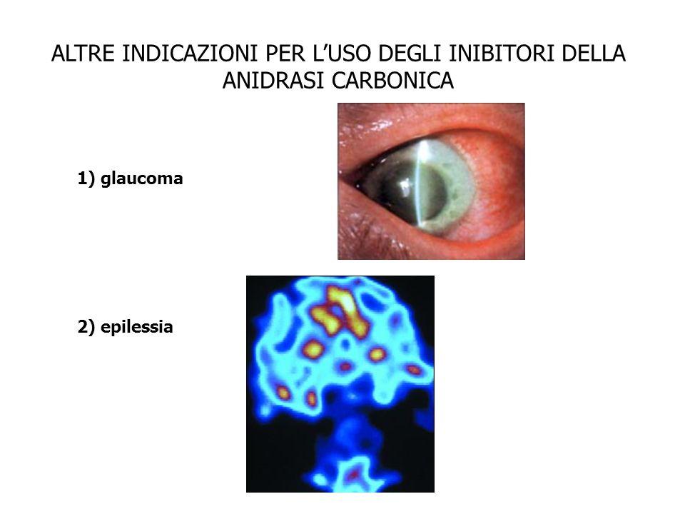 ALTRE INDICAZIONI PER LUSO DEGLI INIBITORI DELLA ANIDRASI CARBONICA 1) glaucoma 2) epilessia