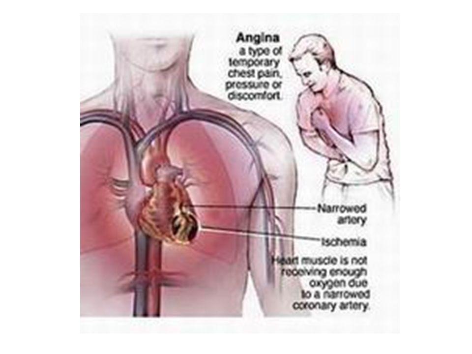 ISCHEMIA DEL MIOCARDIO CORONAROPATIA CRONICA (angina stabile) SINDROMI CORONARICHE ACUTE angina instabile infarto del miocardio senza innalzamento ST infarto del miocardio con innalzamento ST