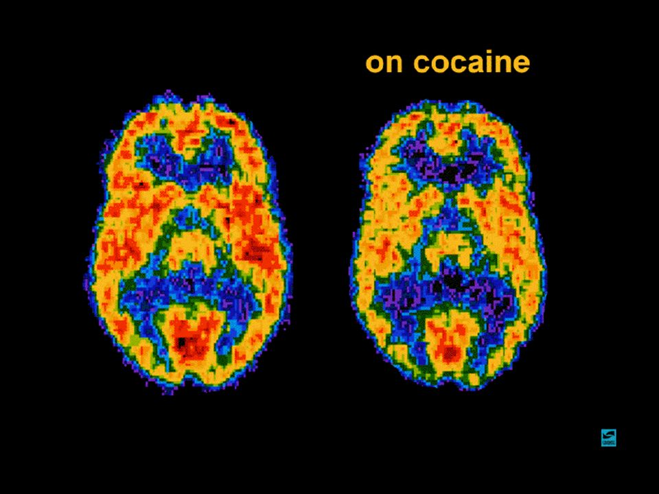 Short-term effects of cocaine Increased energy Decreased appetite Mental alertness Increased heart rate and blood pressure Constricted blood vessels Increased temperature Dilated pupils Long-term effects of cocaine Addiction Irritability and mood disturbances Restlessness Paranoia Auditory hallucinations Medical consequences of cocaine abuse Cardiovascular effects disturbances in heart rhythm heart attacks Respiratory effects chest pain respiratory failure Neurological effects strokes seizures and headaches Gastrointestinal complications abdominal pain nausea
