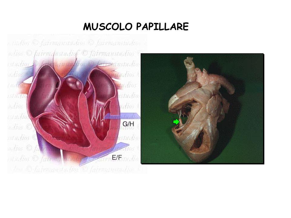 MUSCOLO PAPILLARE