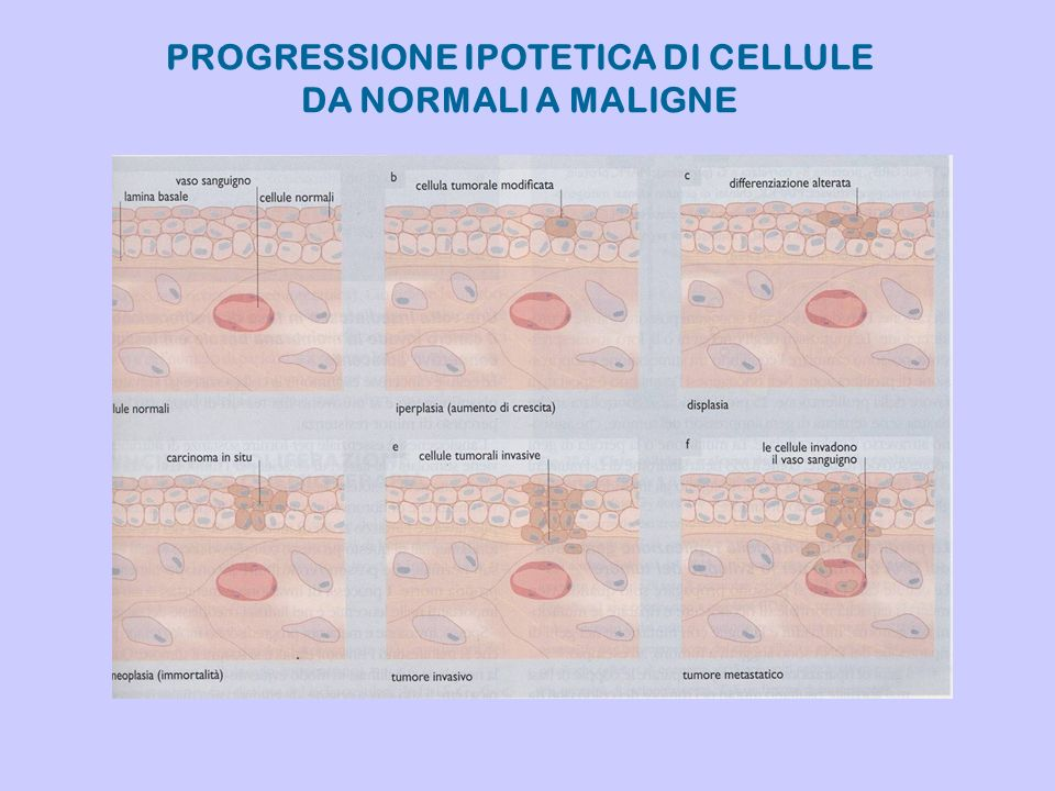 PROGRESSIONE IPOTETICA DI CELLULE DA NORMALI A MALIGNE