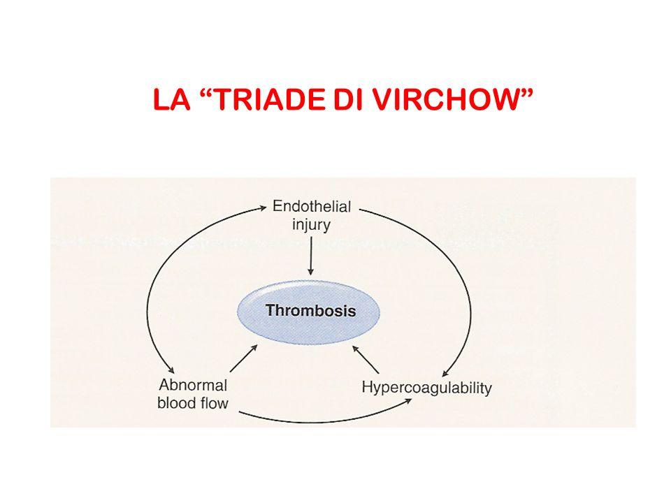 FATTORI CHE PREDISPONGONO ALLA FORMAZIONE DI TROMBI 1) Lesioni della parete vascolare ipertensione flusso turbolento iperlipidemia diabete mellito traumi alcune infezioni