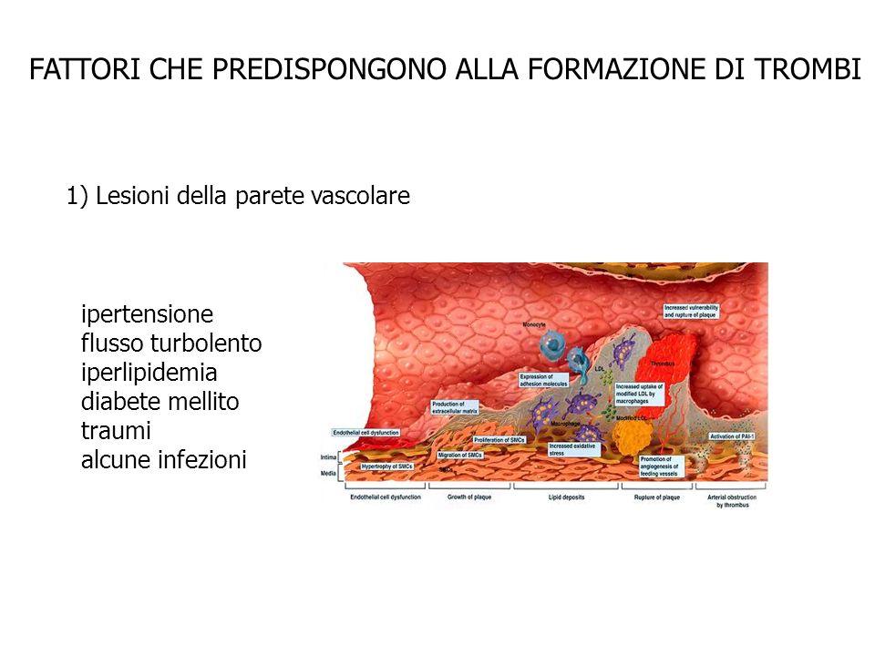 FATTORI CHE PREDISPONGONO ALLA FORMAZIONE DI TROMBI 1) Lesioni della parete vascolare ipertensione flusso turbolento iperlipidemia diabete mellito tra