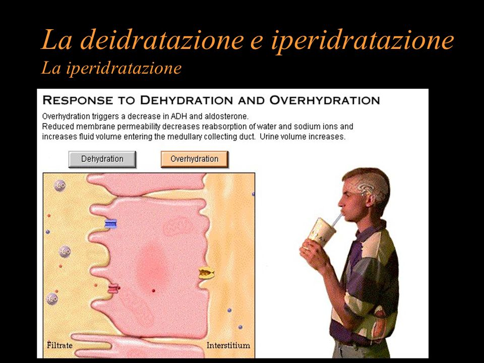La deidratazione e iperidratazione La iperidratazione