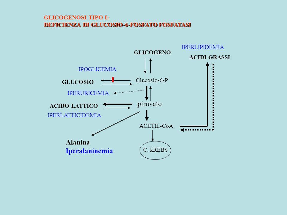 ACETIL-CoA piruvato Glucosio-6-P GLICOGENO ACIDI GRASSI GLUCOSIO ACIDO LATTICO C. kREBS GLICOGENOSI TIPO I: DEFICIENZA DI GLUCOSIO-6-FOSFATO FOSFATASI
