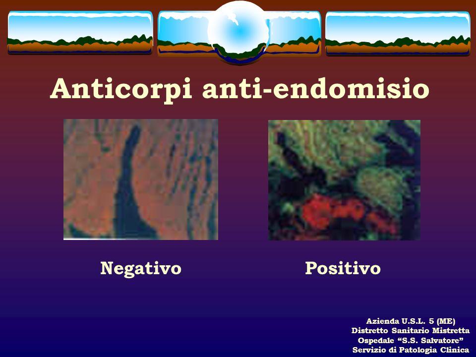 Azienda U.S.L. 5 (ME) Distretto Sanitario Mistretta Ospedale S.S. Salvatore Servizio di Patologia Clinica Anticorpi anti-endomisio NegativoPositivo