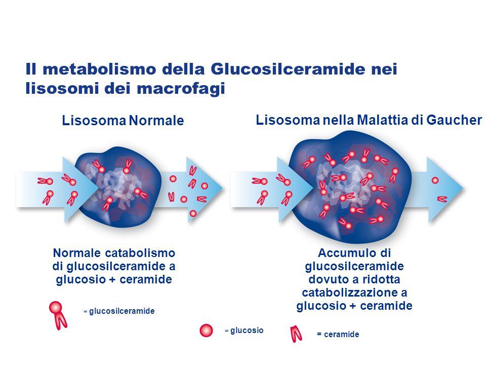 Lisosoma nella Malattia di Gaucher Lisosoma Normale Accumulo di glucosilceramide dovuto a ridotta catabolizzazione a glucosio + ceramide Normale catabolismo di glucosilceramide a glucosio + ceramide = glucosilceramide = glucosio = ceramide Il metabolismo della Glucosilceramide nei lisosomi dei macrofagi