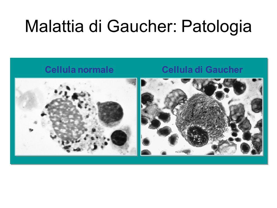 Malattia di Gaucher: Patologia Cellula di GaucherCellula normale