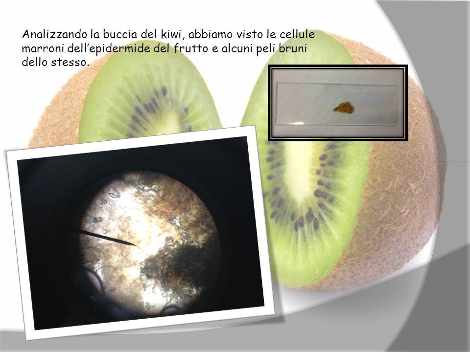 Analizzando la buccia del kiwi, abbiamo visto le cellule marroni dellepidermide del frutto e alcuni peli bruni dello stesso.