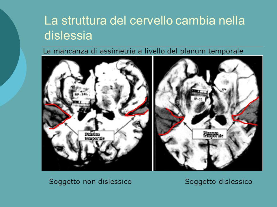 La struttura del cervello cambia nella dislessia La corteccia cerebrale presenta assimetrie atipiche Le connessioni interemisferiche sono modificate I