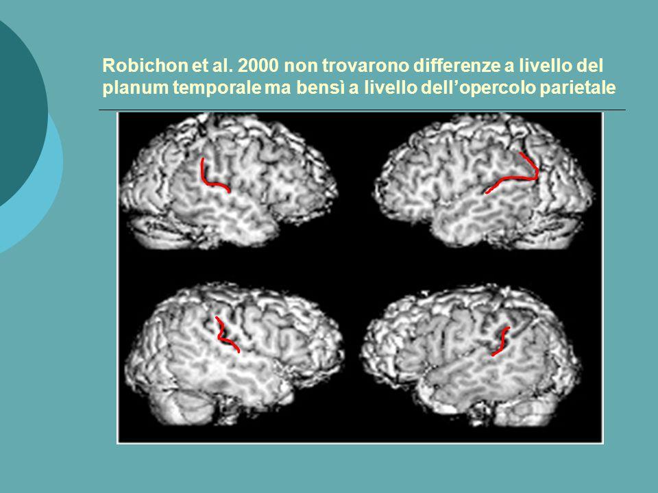 La struttura del cervello cambia nella dislessia Soggetto non dislessico Soggetto dislessico La mancanza di assimetria a livello del planum temporale