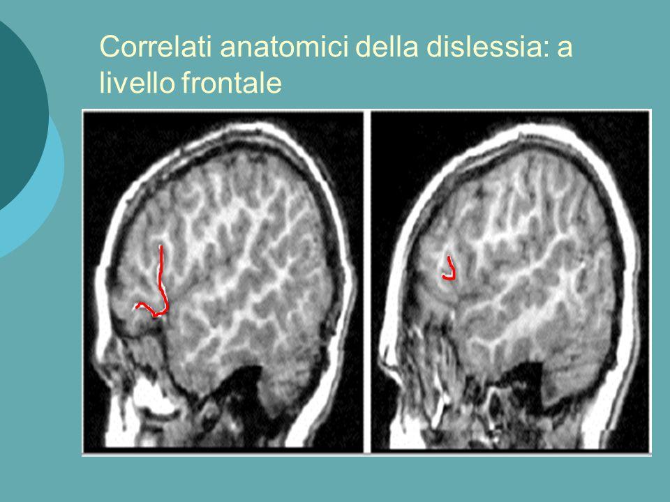 Leonard et al: asimmetria a livello della corteccia parietale e temporale