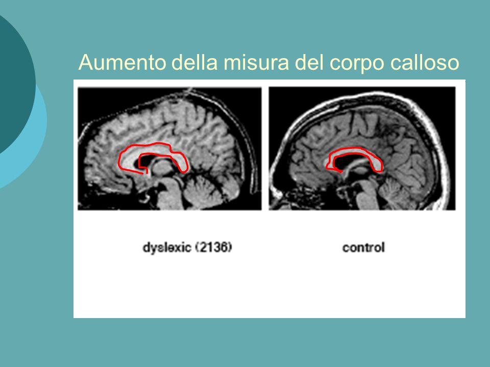 Correlati anatomici della dislessia: a livello cerebellare