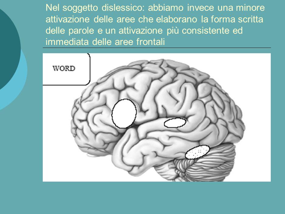 Nel soggetto non dislessico: abbiamo una notevole e veloce attivazione a livello delle aree che elaborano la forma scritta della parola