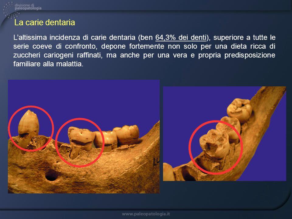 Laltissima incidenza di carie dentaria (ben 64,3% dei denti), superiore a tutte le serie coeve di confronto, depone fortemente non solo per una dieta