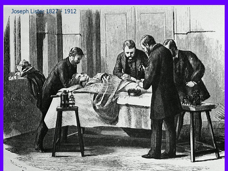 Lantisepsi Joseph Lister 1827 - 1912