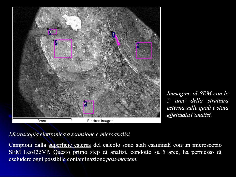 Microscopia elettronica a scansione e microanalisi Campioni dalla superficie esterna del calcolo sono stati esaminati con un microscopio SEM Leo435VP.