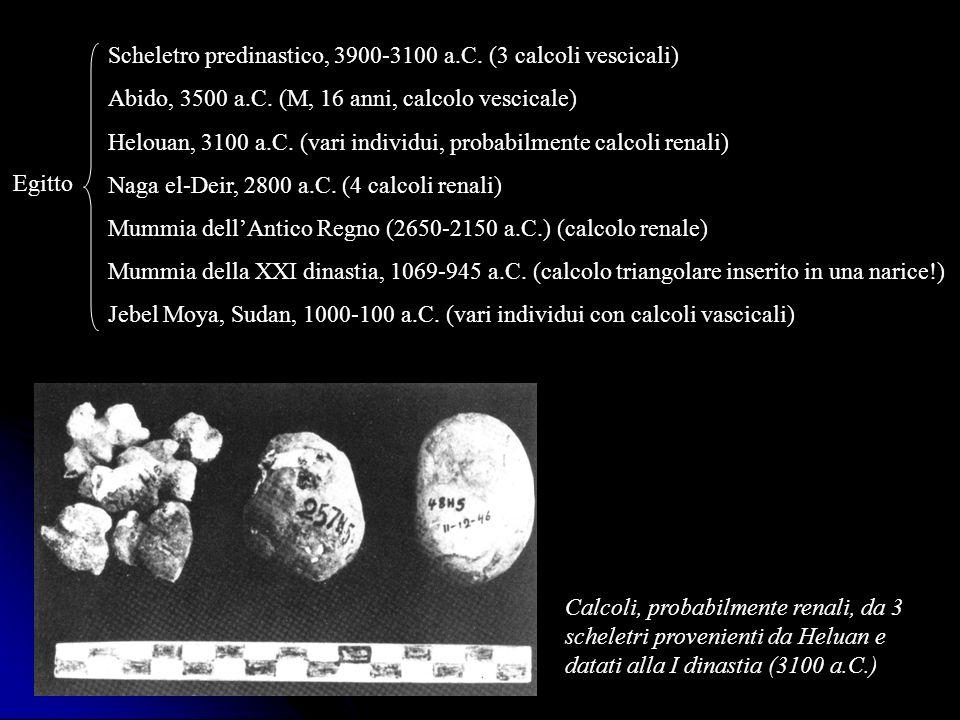 Egitto Scheletro predinastico, 3900-3100 a.C. (3 calcoli vescicali) Abido, 3500 a.C. (M, 16 anni, calcolo vescicale) Helouan, 3100 a.C. (vari individu