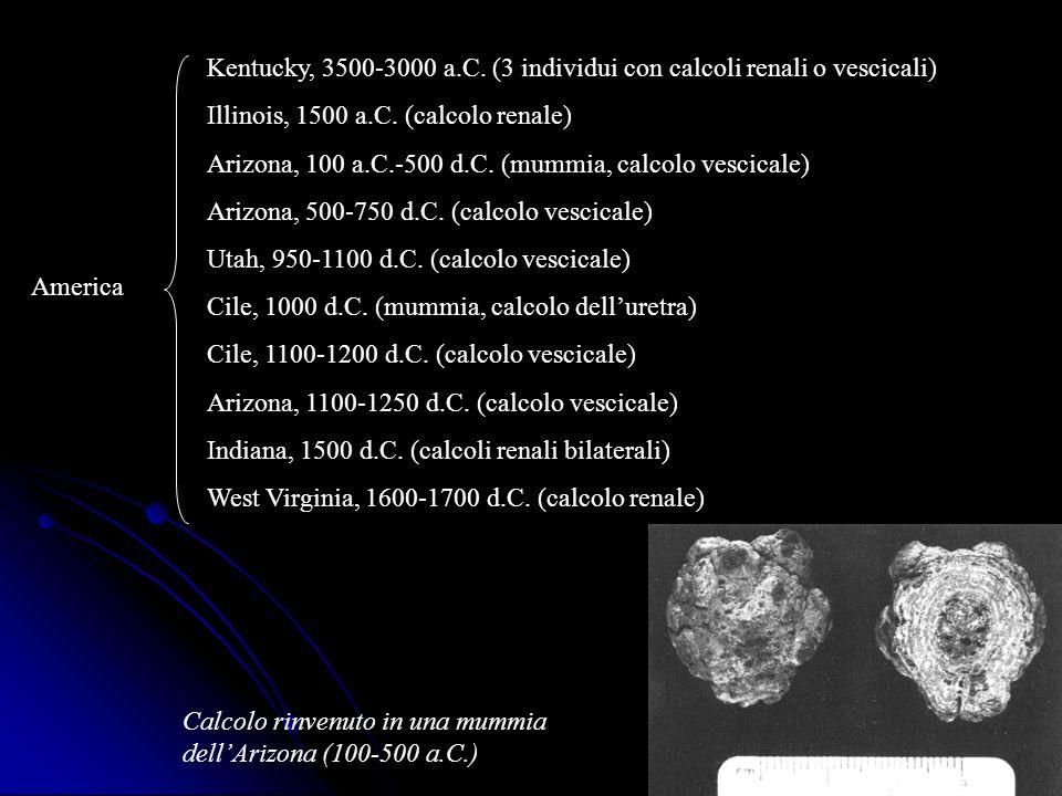 America Kentucky, 3500-3000 a.C. (3 individui con calcoli renali o vescicali) Illinois, 1500 a.C. (calcolo renale) Arizona, 100 a.C.-500 d.C. (mummia,