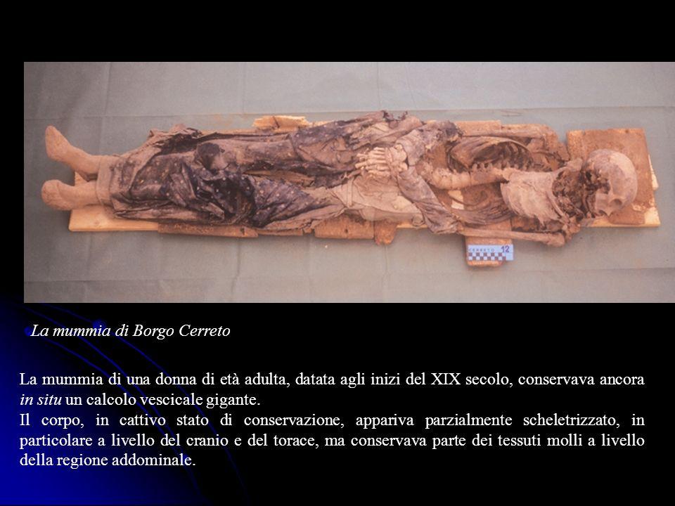 La mummia di una donna di età adulta, datata agli inizi del XIX secolo, conservava ancora in situ un calcolo vescicale gigante. Il corpo, in cattivo s