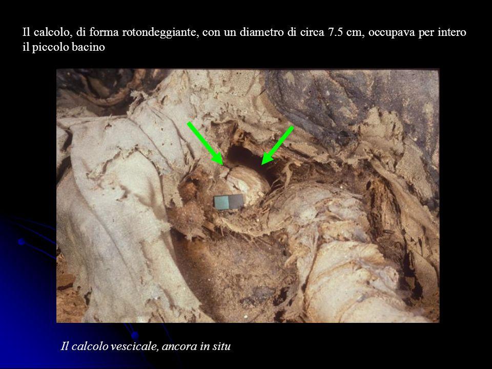 Il calcolo, di forma rotondeggiante, con un diametro di circa 7.5 cm, occupava per intero il piccolo bacino Il calcolo vescicale, ancora in situ
