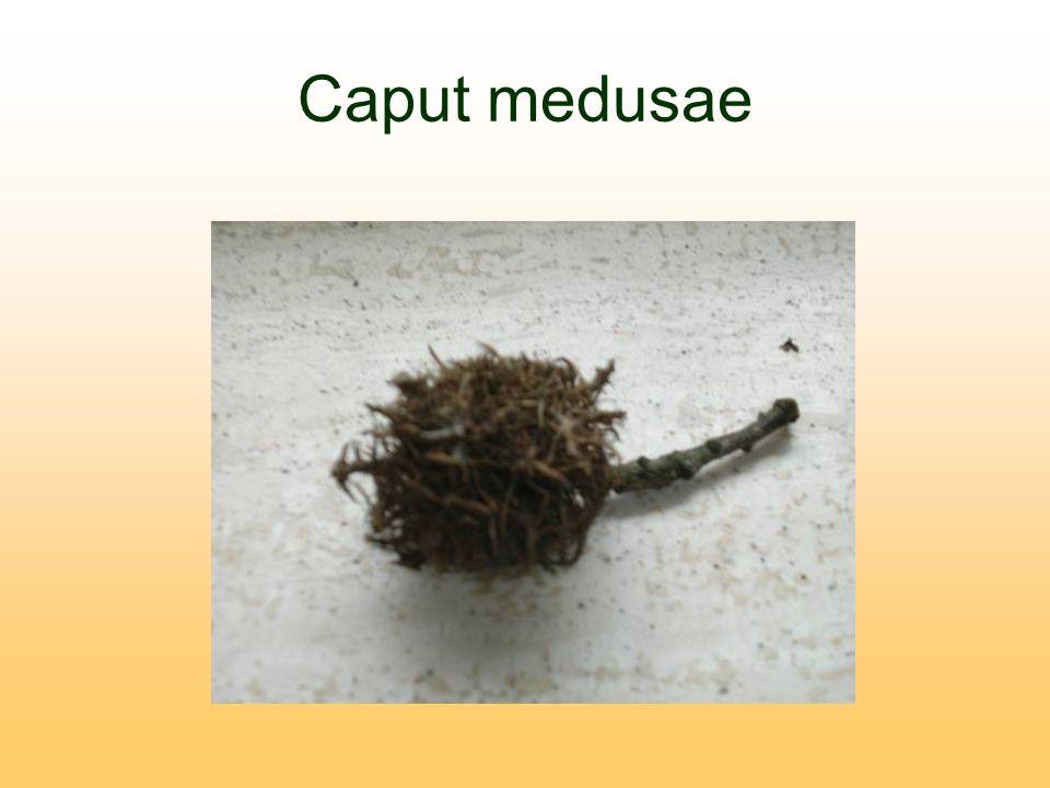 Caput medusae