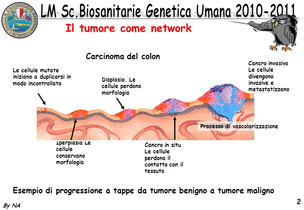 By NA 2 Il tumore come network Carcinoma del colon Esempio di progressione a tappe da tumore benigno a tumore maligno Iperplasia Le cellule conservano