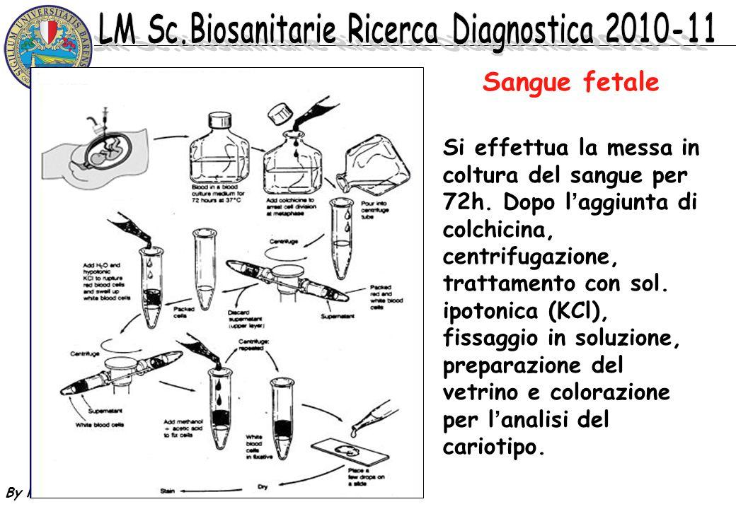 By NA Sangue fetale Si effettua la messa in coltura del sangue per 72h. Dopo laggiunta di colchicina, centrifugazione, trattamento con sol. ipotonica