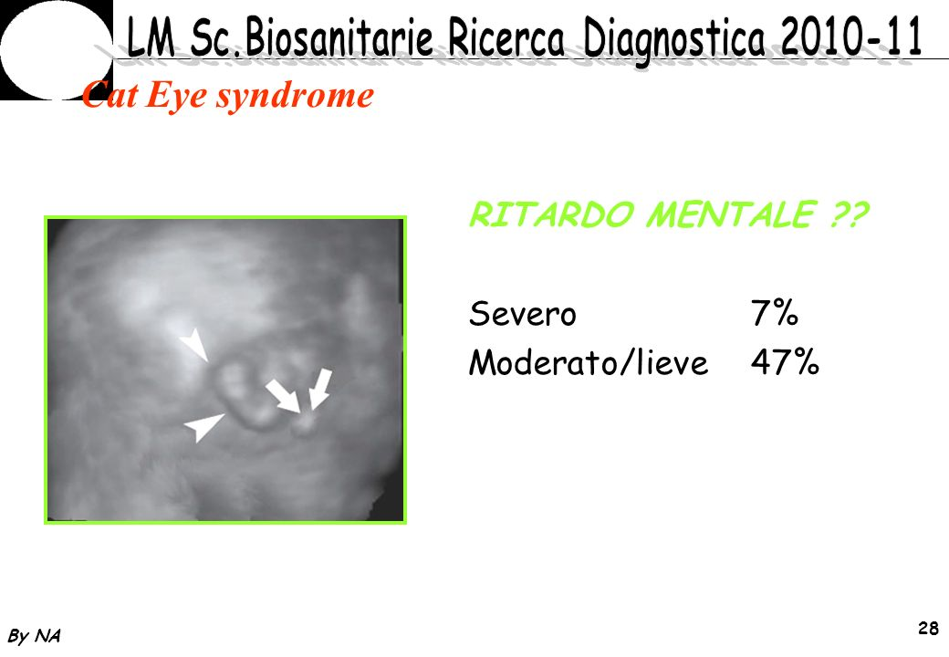 By NA 28 Cat Eye syndrome RITARDO MENTALE ?? Severo7% Moderato/lieve47%