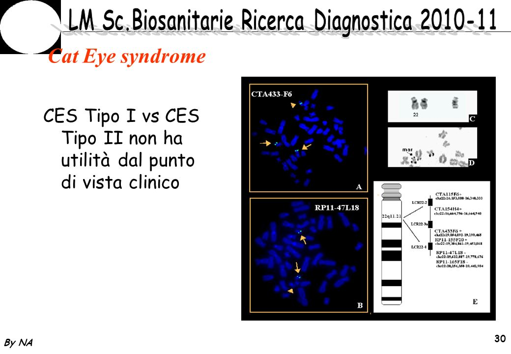 By NA 30 Cat Eye syndrome CES Tipo I vs CES Tipo II non ha utilità dal punto di vista clinico