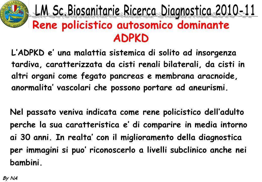 By NA Rene policistico autosomico dominante ADPKD LADPKD e una malattia sistemica di solito ad insorgenza tardiva, caratterizzata da cisti renali bila
