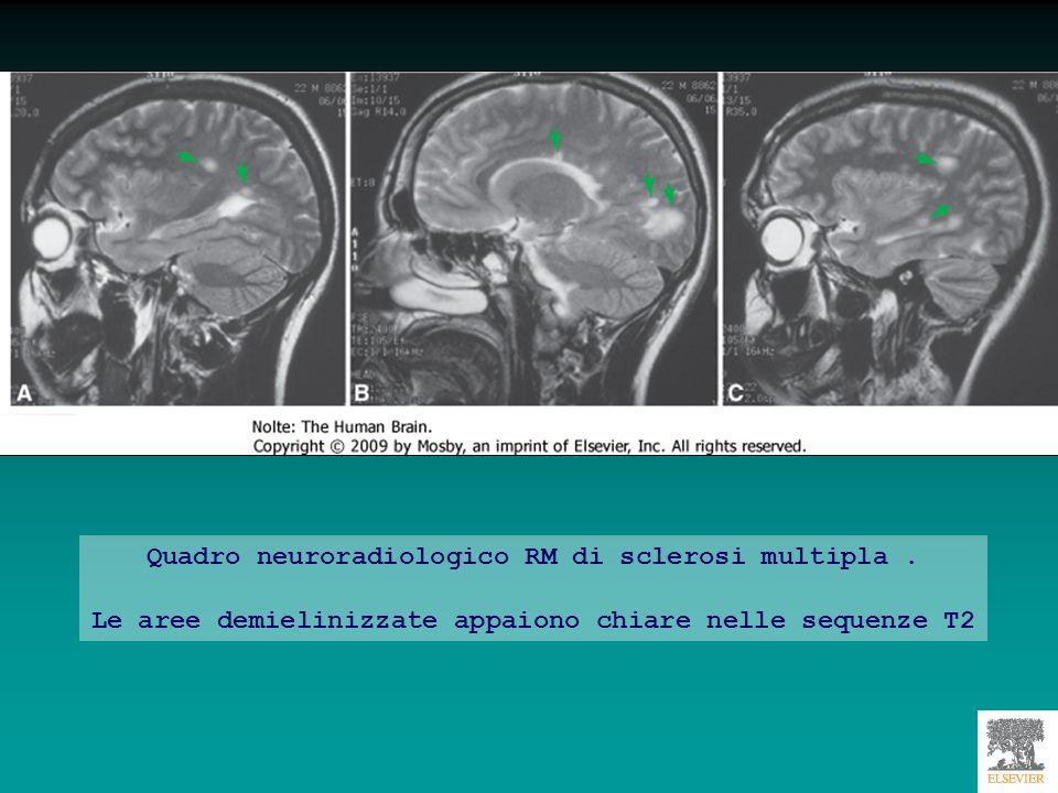 Meningioma frontale
