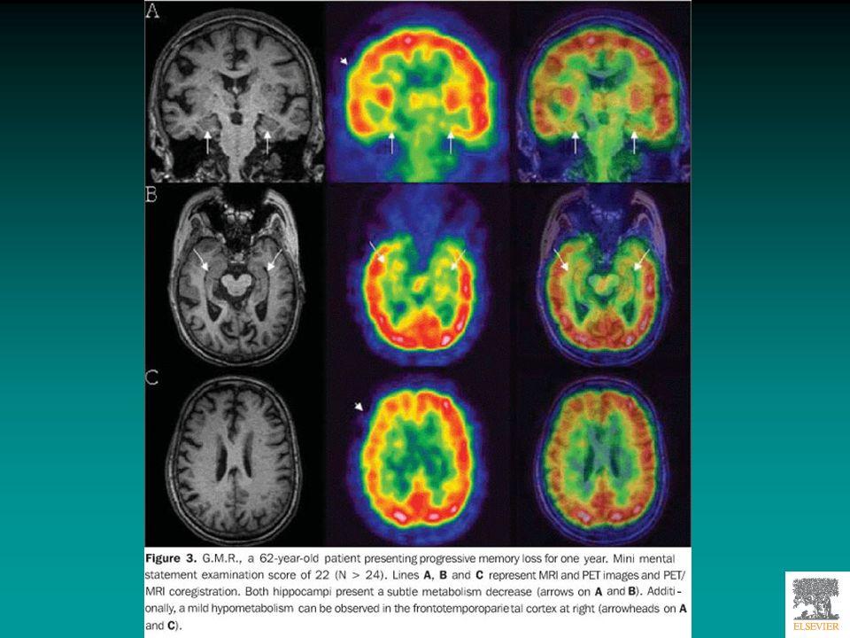 RISONANZA MAGNETICA FUNZIONALE Si basa sulle proprietà paramagnetiche dellemoglobina e della deossiemoglobina Le aree cerebrali in attività ricevono una quantità di sangue maggiore Il sangue intorno e dentro queste aree contiene + ossigeno, quindi il rapporto emoglobina/deossiemoglobina è diverso in unarea cerebrale attiva rispetto ad unarea cerebrale inattiva La RMf rileva il segnale magnetico dellossigeno contenuto nellemoglobina/deossiemoglobina