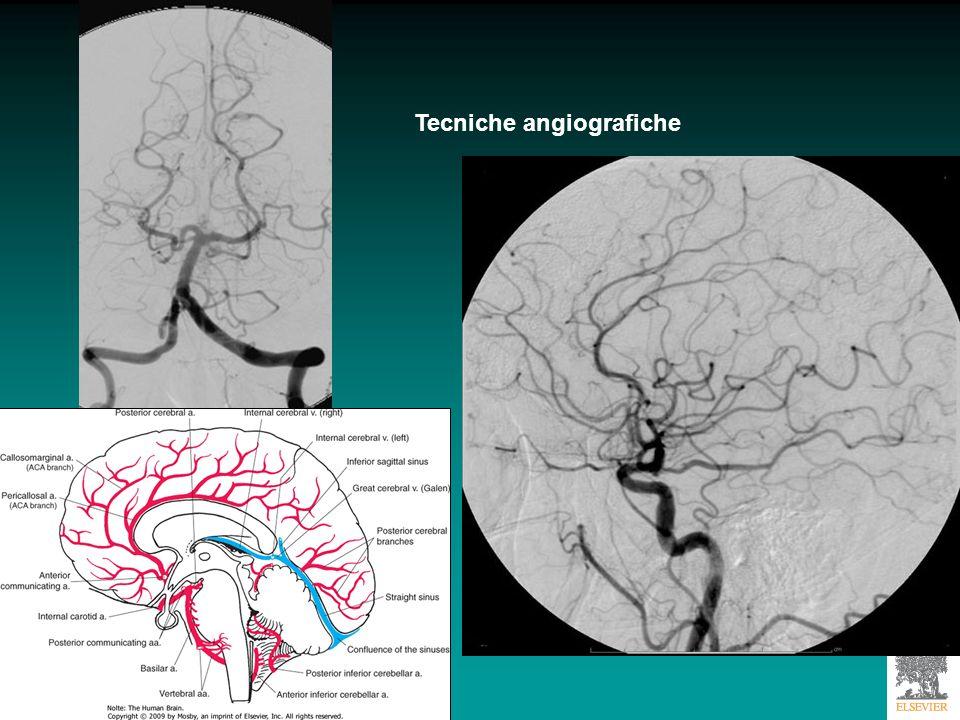 Angiografia di una donna di 48 aa che mostra aneurisma della carotide interna