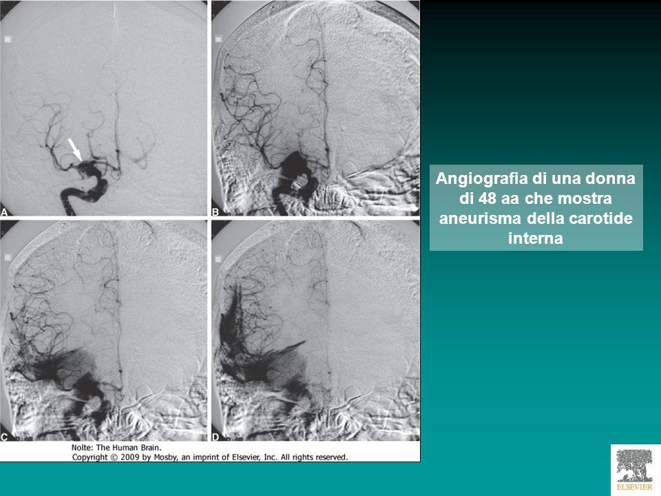 Aneurisma intracranico nella parte anteriore del circolo di Willis Downloaded from: StudentConsult (on 30 January 2011 06:11 PM) © 2005 Elsevier