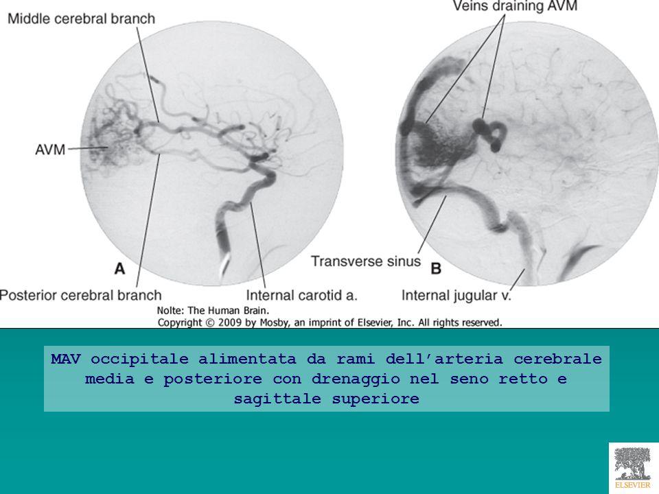 MAV occipitale alimentata da rami dellarteria cerebrale media e posteriore con drenaggio nel seno retto e sagittale superiore
