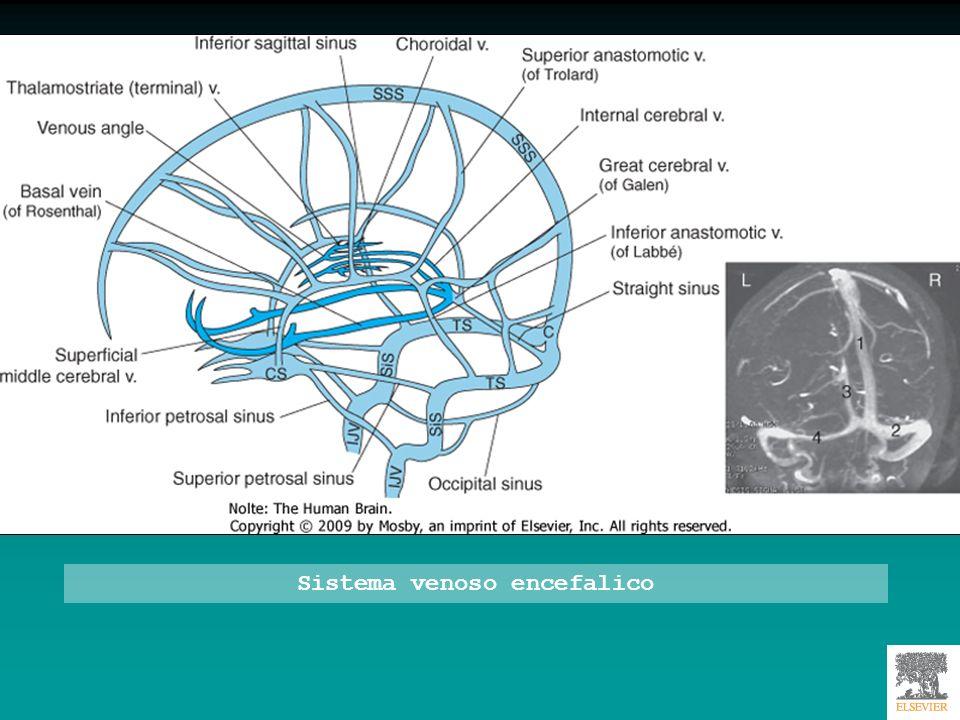 Sistema venoso cerebrale ricostruito con TAC (A-B-C) e RM (D)