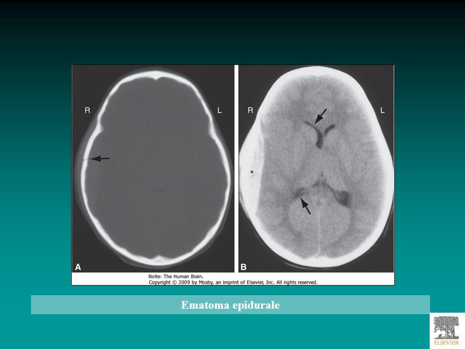Paziente con trauma cranico avvenuto 4 giorni prima, con breve perdita di coscienza