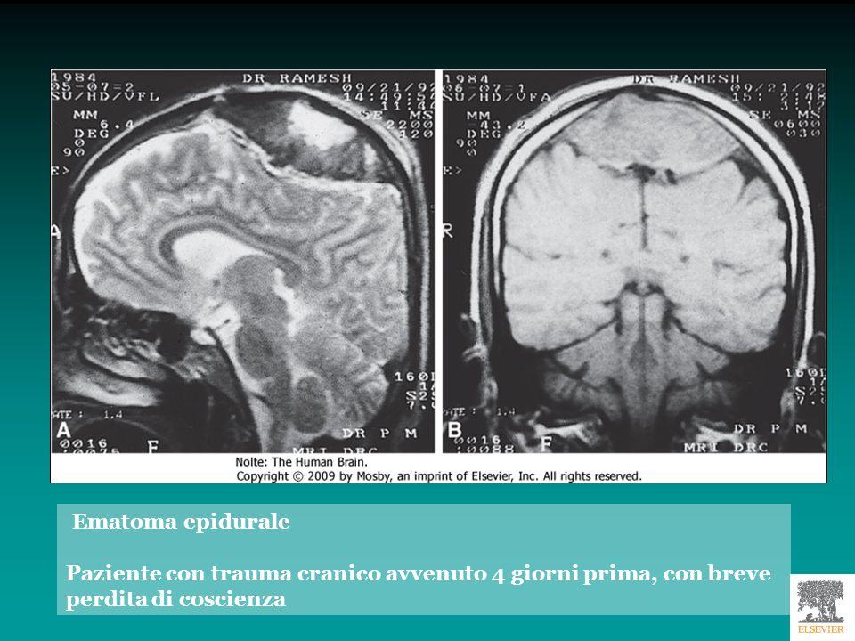 Ematoma subdurale Soggetto di 64 anni con comparsa graduale di cefalea Regressione dopo intervento chirurgico
