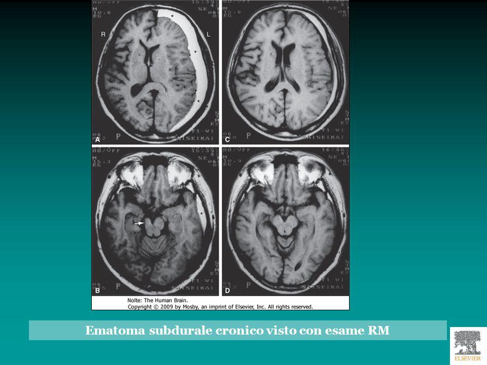 Tipi di erniazione cerebrale A: normale B: erniazione transfalcale C : erniazione transtentoriale D : erniazione attraverso il forame magno