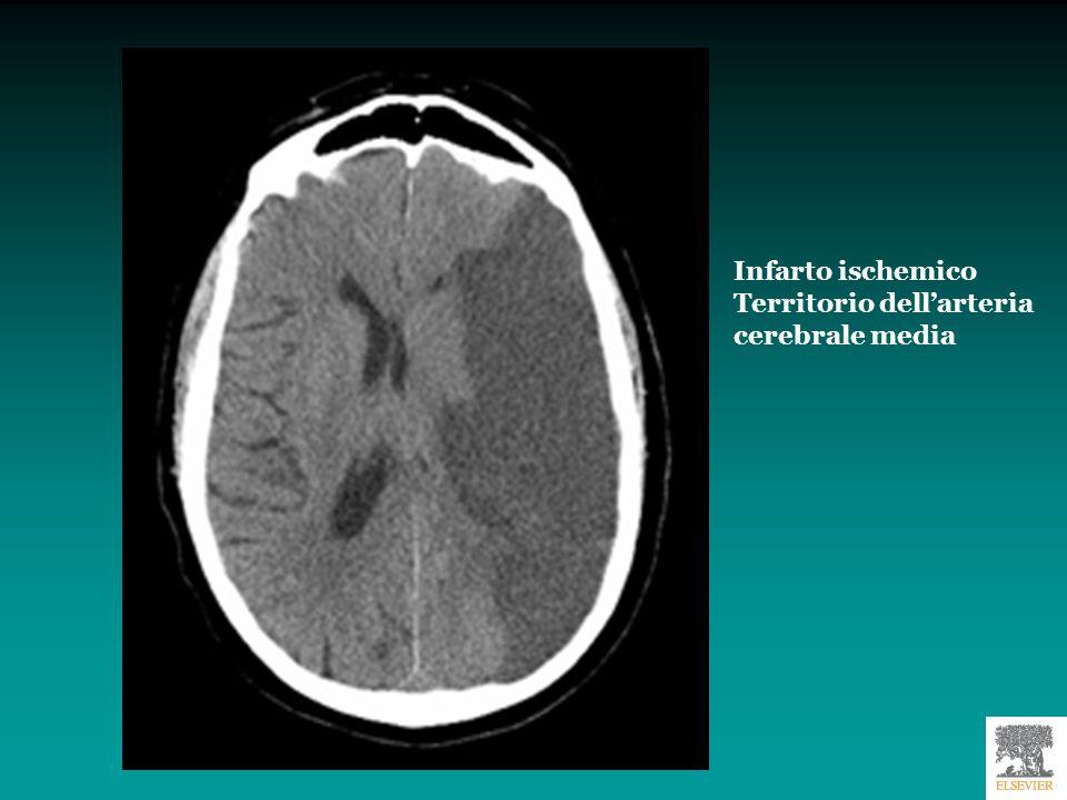 RM del midollo spinale: le immagini hanno uno straordinario dettaglio anatomico