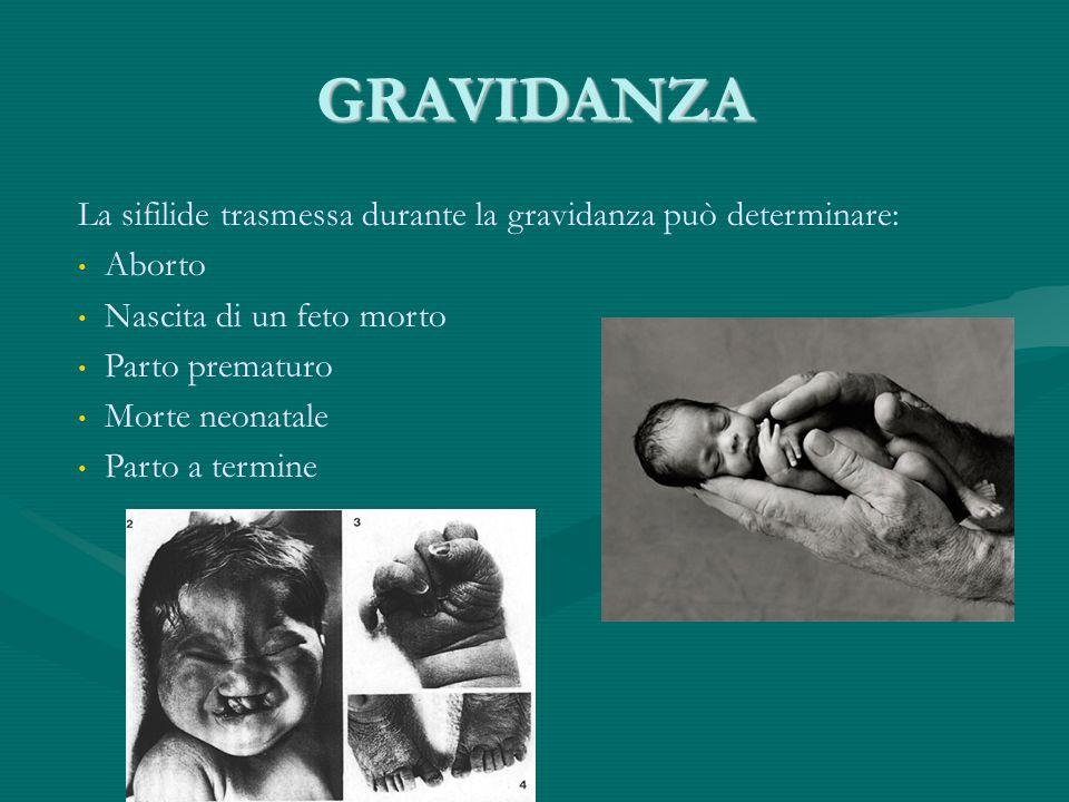 GRAVIDANZA La sifilide trasmessa durante la gravidanza può determinare: Aborto Nascita di un feto morto Parto prematuro Morte neonatale Parto a termin