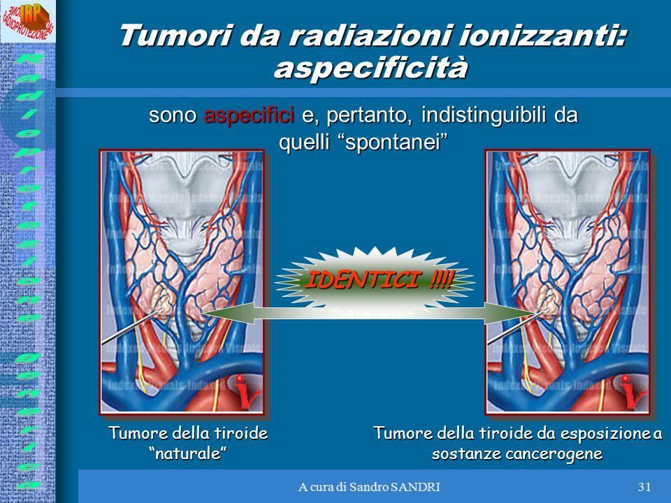 A cura di Sandro SANDRI31 Tumori da radiazioni ionizzanti: aspecificità sono aspecifici e, pertanto, indistinguibili da quelli spontanei Tumore della
