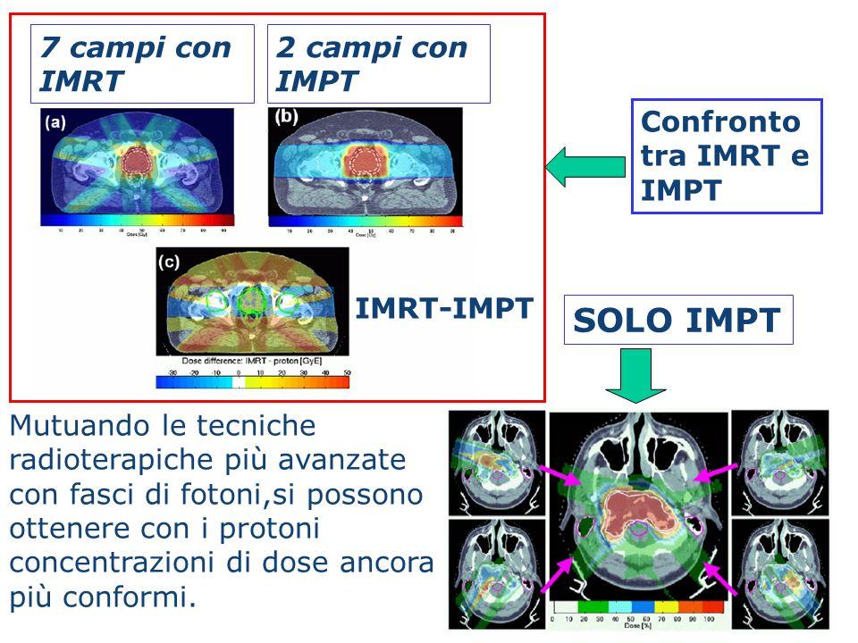 SOLO IMPT IMRT-IMPT 7 campi con IMRT 2 campi con IMPT Confronto tra IMRT e IMPT Mutuando le tecniche radioterapiche più avanzate con fasci di fotoni,s