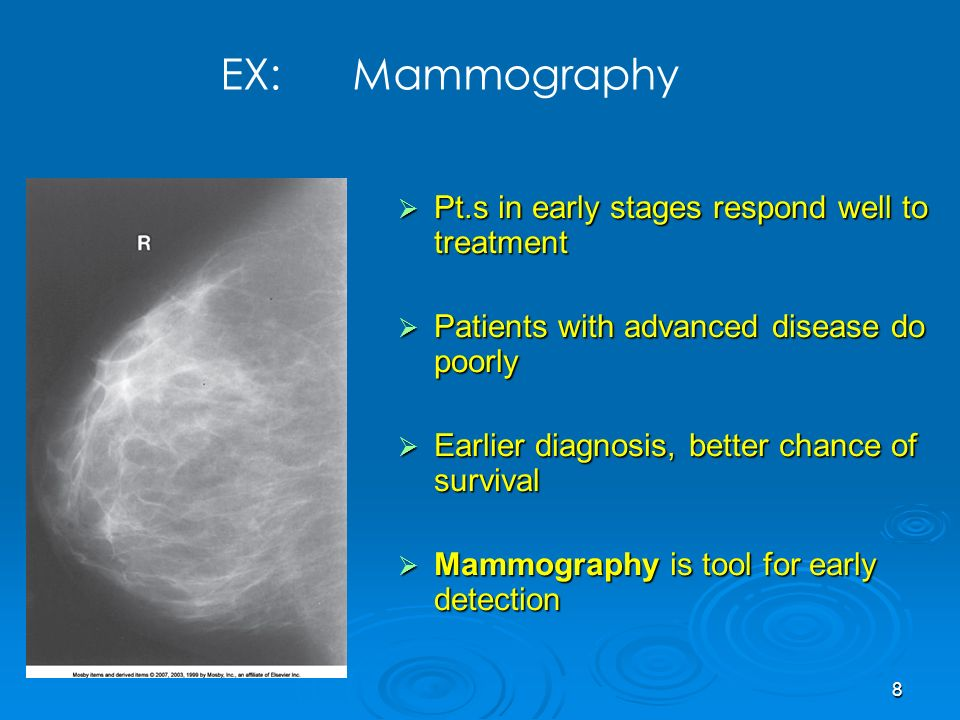 8 Pt.s in early stages respond well to treatment Pt.s in early stages respond well to treatment Patients with advanced disease do poorly Patients with advanced disease do poorly Earlier diagnosis, better chance of survival Earlier diagnosis, better chance of survival Mammography is tool for early detection Mammography is tool for early detection EX: Mammography