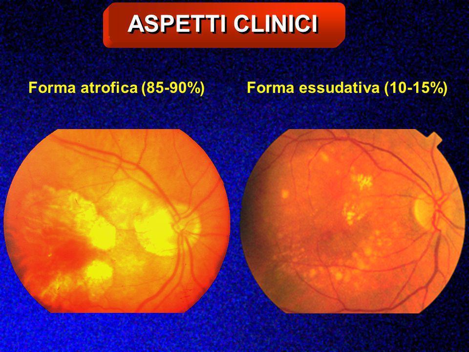 ASPETTI CLINICI Forma atrofica (85-90%)Forma essudativa (10-15%)