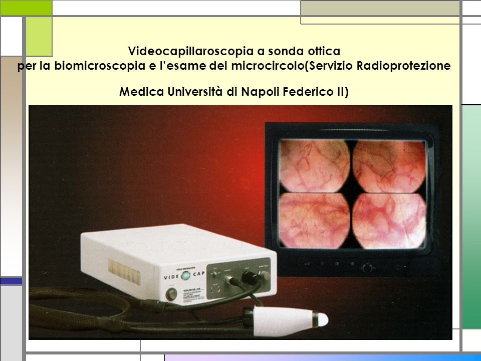 Videocapillaroscopia a sonda ottica per la biomicroscopia e lesame del microcircolo(Servizio Radioprotezione Medica Università di Napoli Federico II)