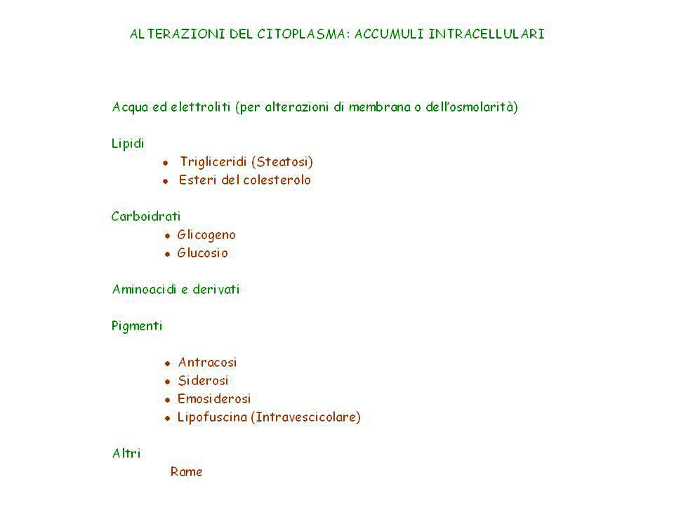Rigonfiamento idropico di epatociti