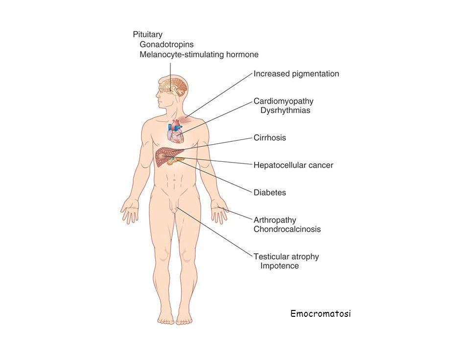 Emocromatosi
