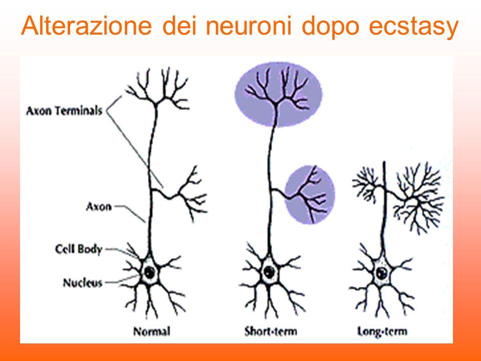 Alterazione dei neuroni dopo ecstasy